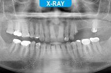 Implants - 5-2