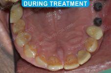 Implants - 5-3