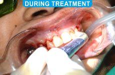 Laser Dentistry 2-3