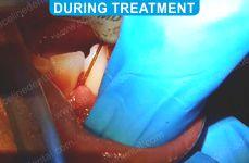 Laser Dentistry 4-2