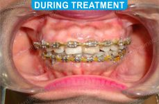 Orthodontics -4-2