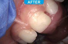 Pediatric Dentistry - 2-3