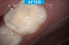 Pediatric Dentistry - 2-4