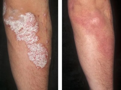 Psoriasis before and after treatment