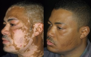 Vitiligo before (l) and after