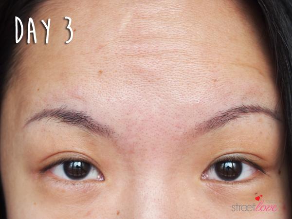 Renee Clinic Botox 10
