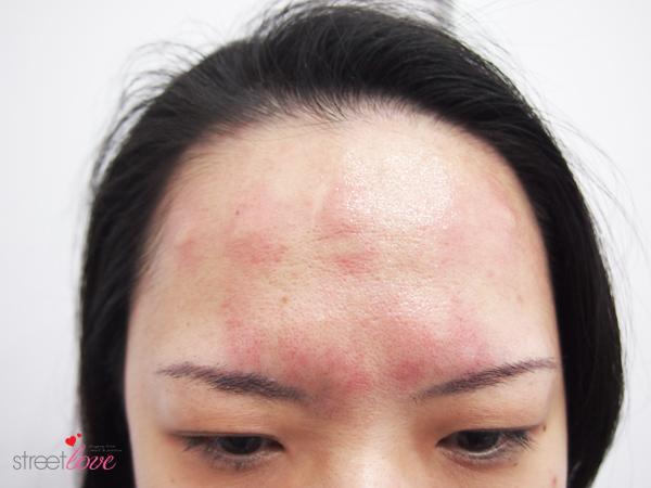 Renee Clinic Botox 6