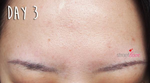 Renee Clinic Botox 9