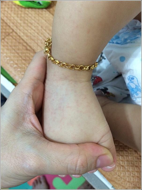 Ayden submerryn hand foot mouth disease_1