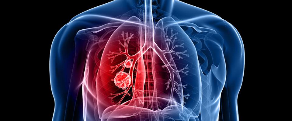 د. عبير صالح : صحة الرئة