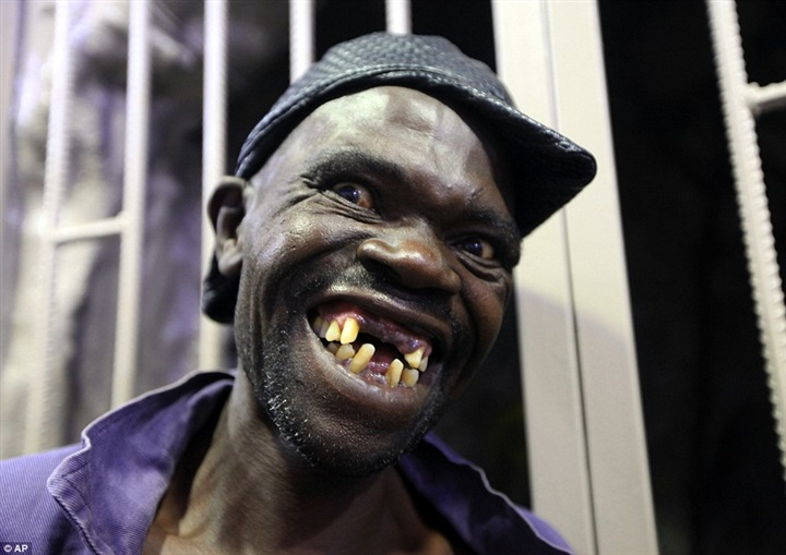 بالصور.. اتهام أقبح رجل في زيمبابوى بالفوز عن طريق «الواسطة»