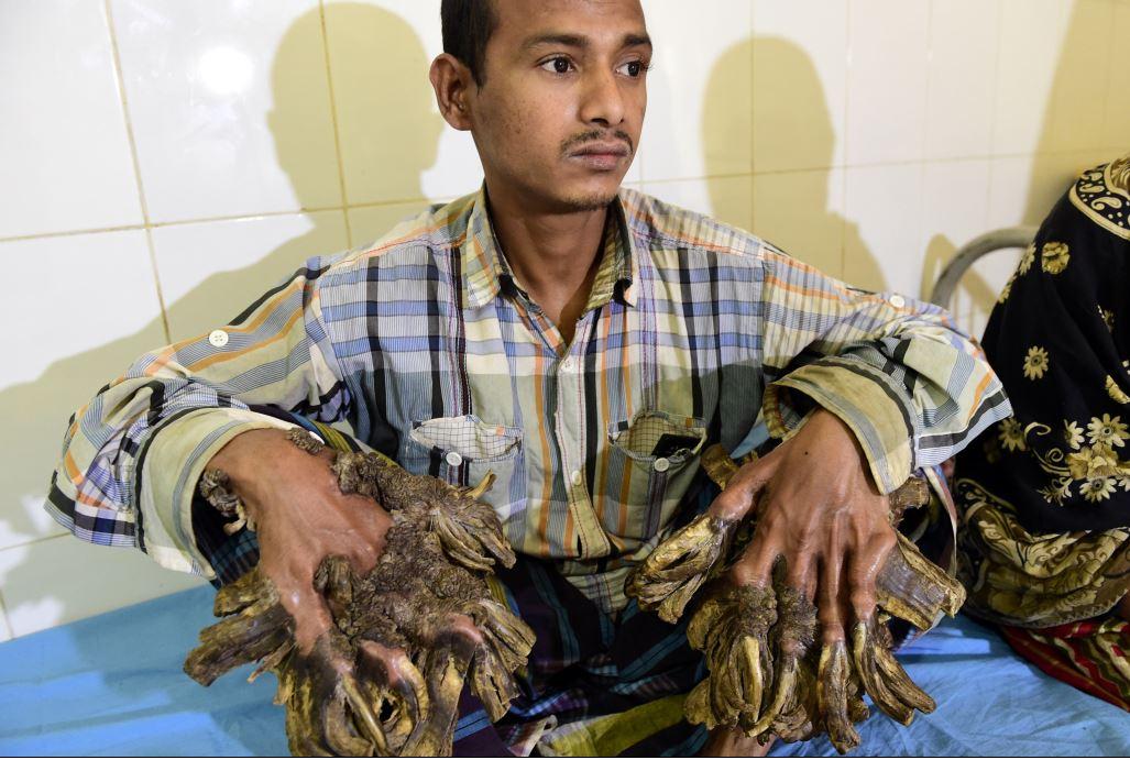 «الرجل الشجرة» يخضع لعملية جراحية بعد 10 سنوات معاناة