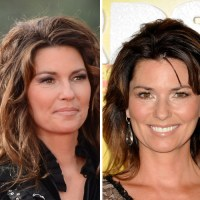 Shania Twain Plastic Surgery Before After, Breast Implants