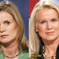 Katty Kay Plastic Surgery Before After, Breast Implants