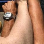 Nyanser av hudfarge