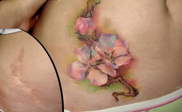 Tatuajes para cubrir Cicatrices - Tatuajes Para Mujeres
