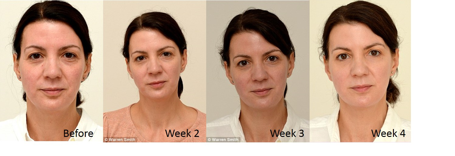 Drinking Water Skin Results