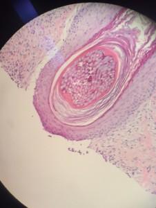 Dermatology resident suture