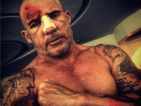 dominic purcell accident