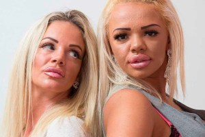 Mother And Daughter Undergo Plastic Surgery To Look Like Twins - TexasNepal News