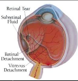 retinal tear detach