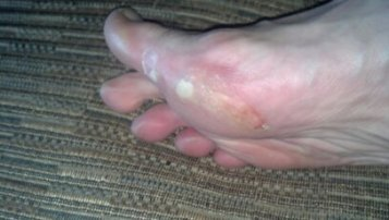 Blistered foot