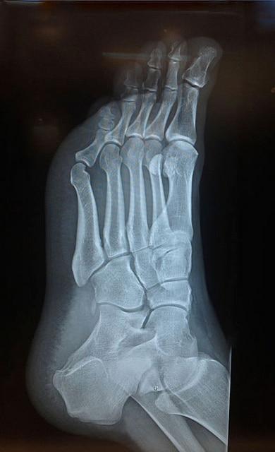 Foot Fracture 7