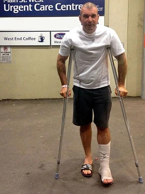 Foot Fracture 9
