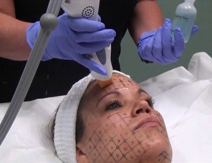 Choosing a Skin Tightening Procedure Based on the Color of Your Skin