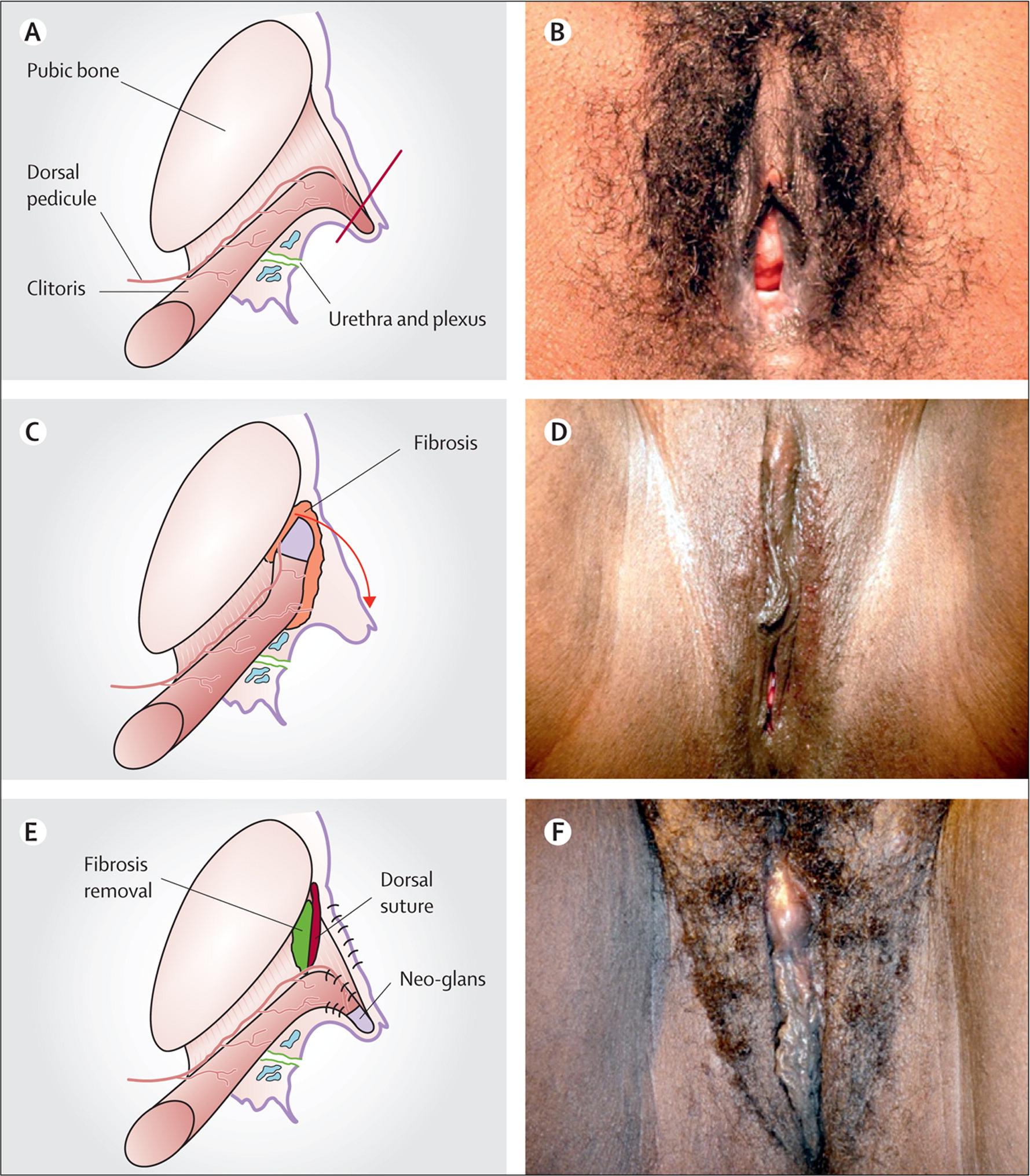 female genital mutilation after