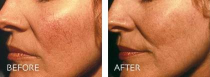 laser skin treatment before and after