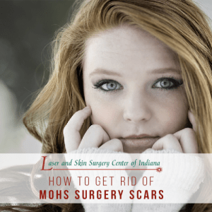 Mohs Surgery Recovery