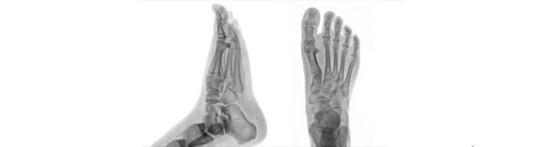 Foot Ankle Surgery