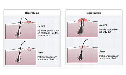 ingrownhair-razor-bumpFB