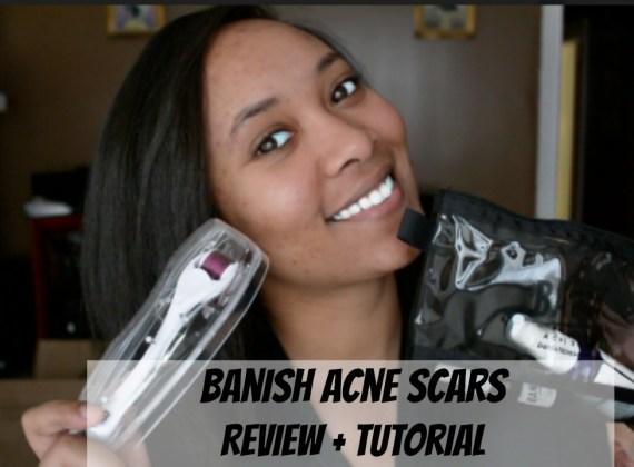 Banish Acne Scars TheMonaLita