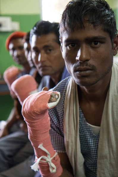 Four men recovering from reconstructive surgery for 'claw hand', a common disability caused by leprosy