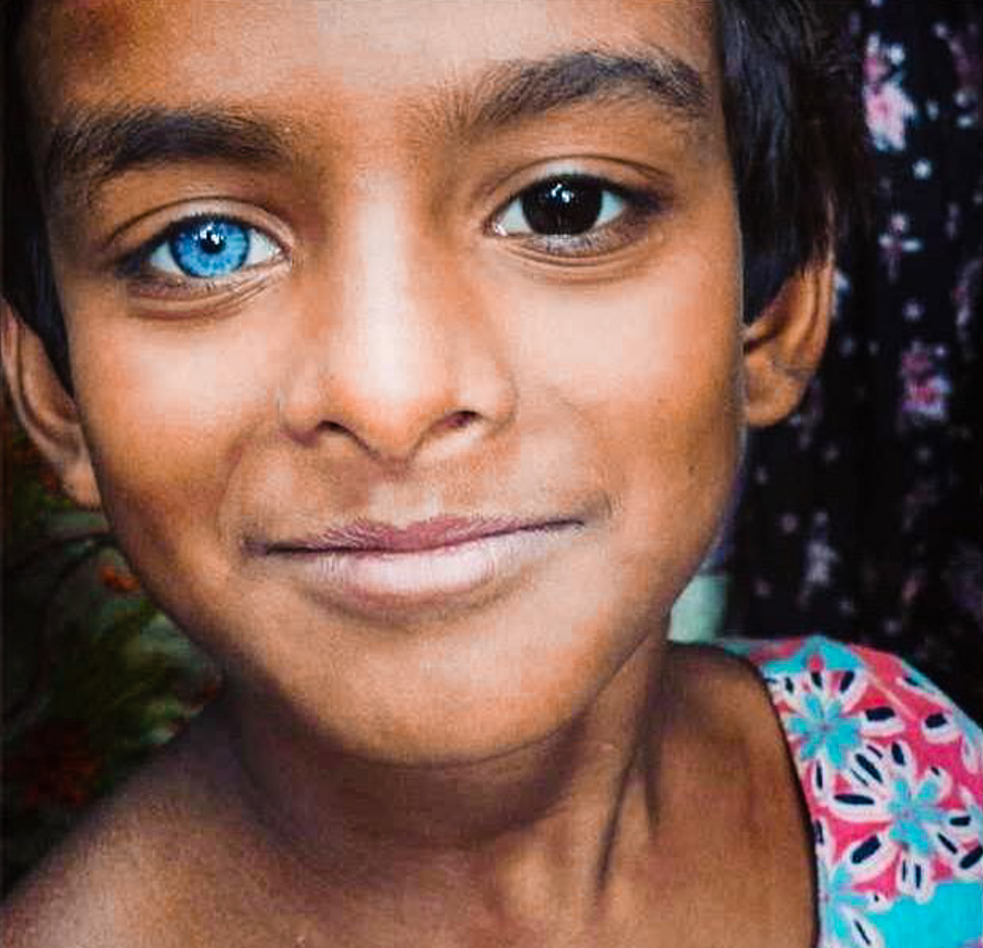 Black people with blue eyes