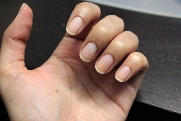 Removed nail polish, all nails