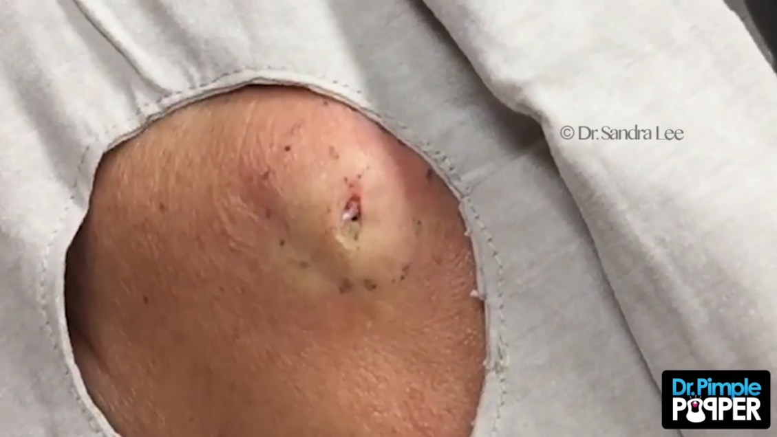 Dr Pimple Pooper cheek cyst