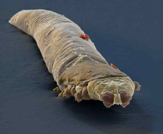 Demodex folliculorum (SEM)
