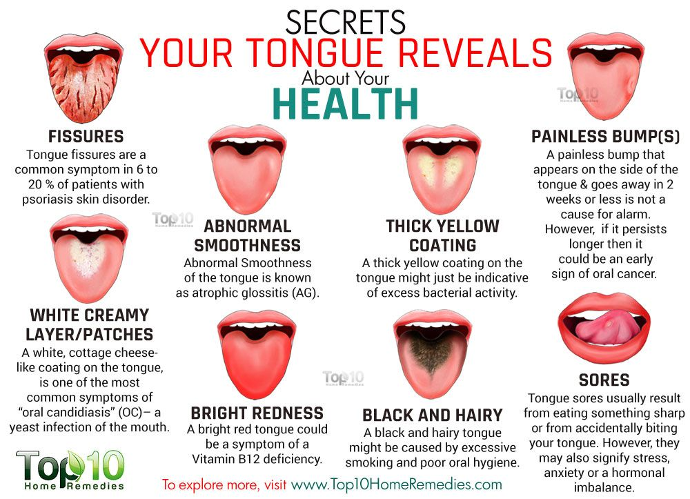 Tongue Sore --- Causes and Top 10 Natural Remedies