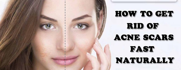 how-to-get-rid-of-acne-scars
