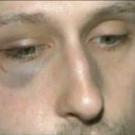 Man Beaten in Anti-Gay Assault Outside California Bowling Alley