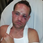 Gay Man Beaten in Seattle's Capitol Hill Neighborhood