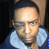 taj patterson assaulted by Mayer Herskovic