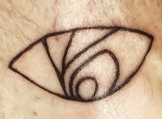 NPH tattoo