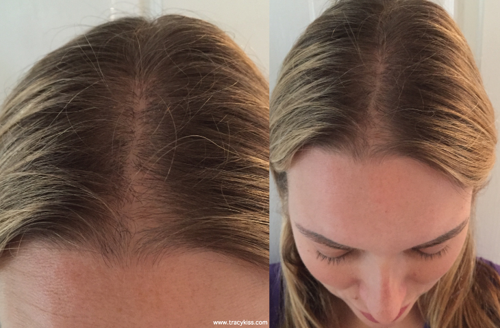 how to tell if my hair is thinning