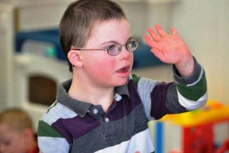 Cách chăm sóc trẻ chậm phát triển trí tuệ đúng cách nhất