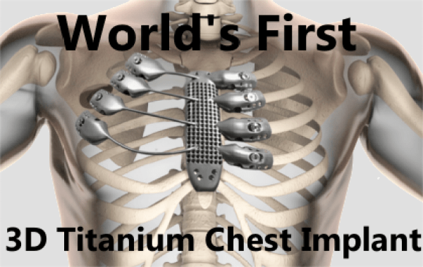 3d-printed-chest
