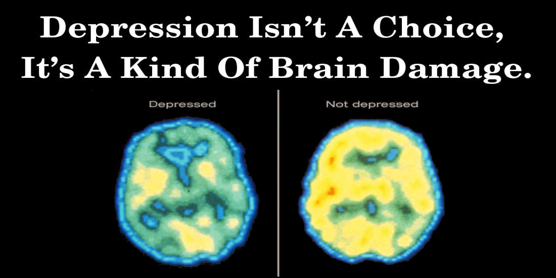Depression Isn't A Choice, It's A Kind Of Brain Damage.
